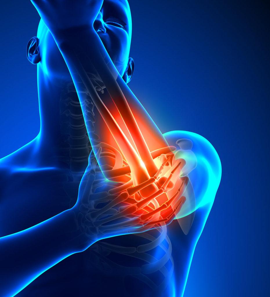 Tennis Elbow Wrist Pain Chiropractor